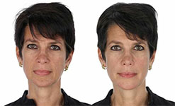Smile and Body Facelift