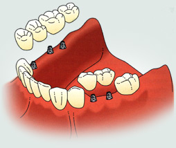 Implant Supported Fixed Partial Denture