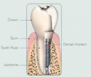 Single Missing Tooth Implant