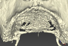 3D virtual model converted from a CT Scan