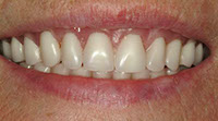 One Day Results with Smile Care